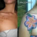 Татуировка върху белег на рамото