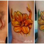 Татуировка върху белег на ръката